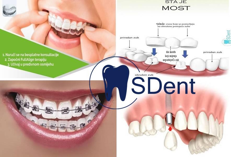 S Dent stomatologija – Kvalitetne stomatološke usluge i najpovoljnije cijene u regionu